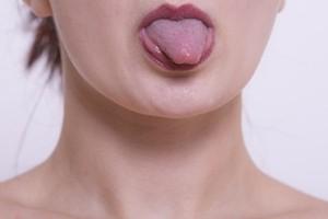 口内炎が舌にできた時の病院