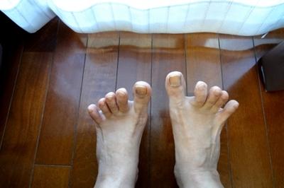 爪水虫の症状