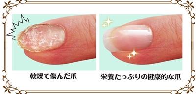 爪のカサカサを治す方法