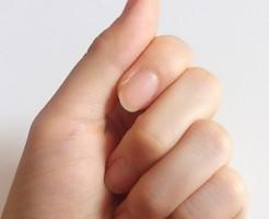 爪のカサカサ